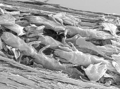 syringophilid-mites-in-quill-sem